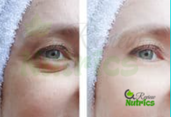 Eye Bags treatment and cure
