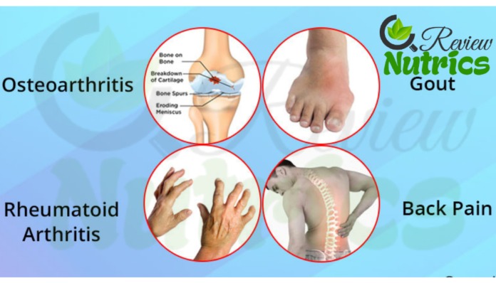 What is Arthritis and Most Common Types and Causes of Arthritis